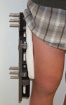 Alex, Post-op thumbnail image, Limb Lengthening, pediatrics, femoral osteotomy, EBI monolateral lengthening frame