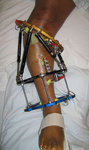 Renee, Post-op thumbnail Image, Limb Lengthening, Taylor Spatial Frame to straighten and lengthen