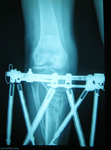 Renee, Post-op thumbnail of an X-ray Image, Limb Lengthening, Taylor Spatial Frame to straighten and lengthen
