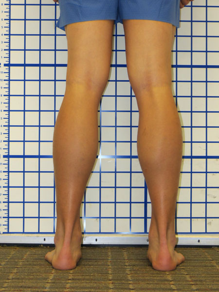 Correction Of Bilateral Knee Valgus Knock Knee With