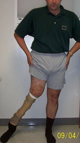 Image: Angelo with prosthesis