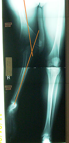 Image: XRay of Angelo's leg pre-surgery