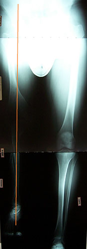 Image: XRay of Angelo's leg post surgery