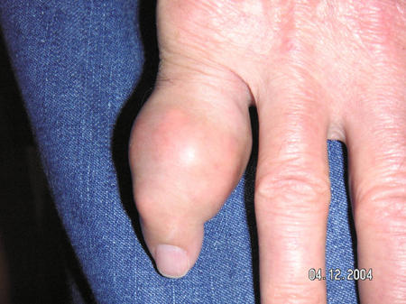 Large tophus of the finger from an article written on Gout by Theodore R. Fields, MD, FACP from Hospital for Special Surgery
