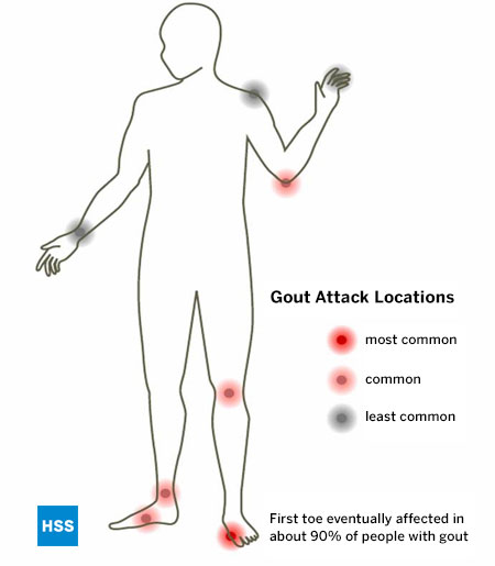 therapy for gout can high uric acid cause blood in urine how to reduce uric acid medication