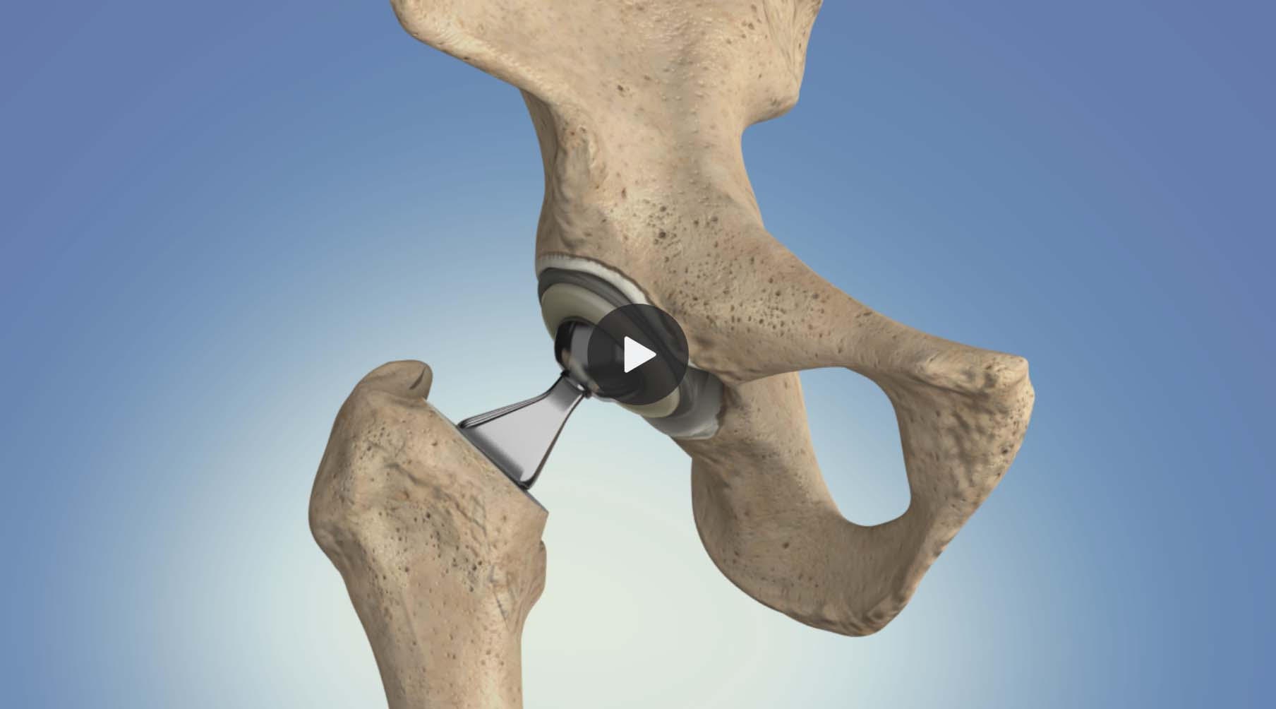 Animation: Hip Replacement