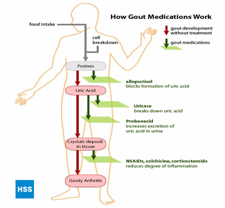 Gout: Risk Factors, Diagnosis and Treatment
