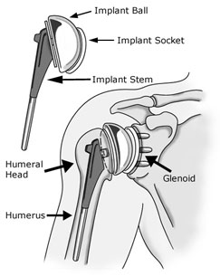 https://www.hss.edu/images/corporate/ShoulderReplacementAnatomy.jpg
