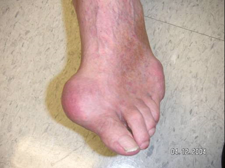 Toe with an acute attack of Gout from an article about Gout written by Theodore R. Fields, MD, FACP from Hospital for Special Surgery