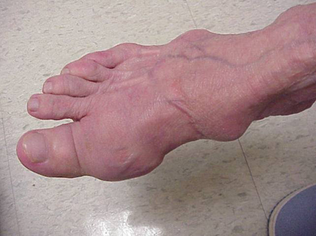 Tophi on foot from an article about Gout written by Theodore R. Fields, MD, FACP from Hospital for Special Surgery