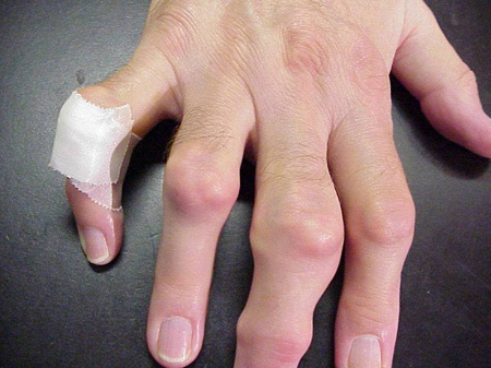 how to know if you broke your thumb knuckle