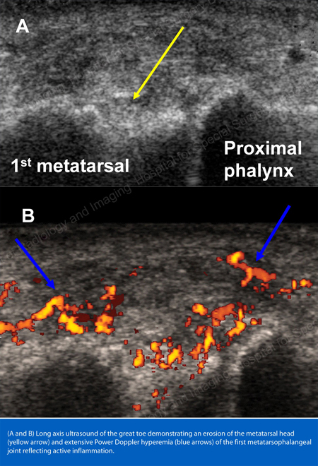 Power Doppler study showing gouty inflammation at the base of the 1st toe from an article written about Gout by Theodore R. Fields, MD, FACP from Hospital for Special Surgery