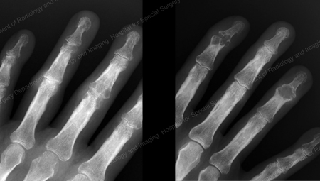 An X-ray of Gout of the Distal Finger Joints from an article about Gout written by Theodore R. Fields, MD, FACP from Hospital for Special Surgery