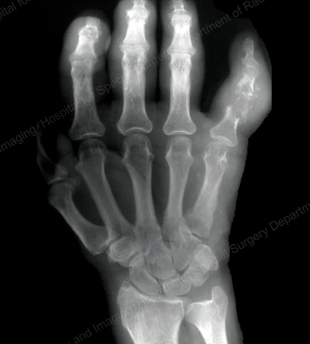 An X-ray of gouty destruction at multiple finger joints from an article about Gout written by Theodore R. Fields, MD, FACP from Hospital for Special Surgery