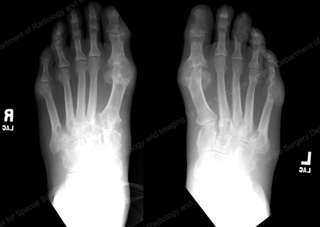 x-ray of Gout at the base of the 1st toe from an article written by Theodore R. Fields, MD, FACP from Hospital for Special Surgery