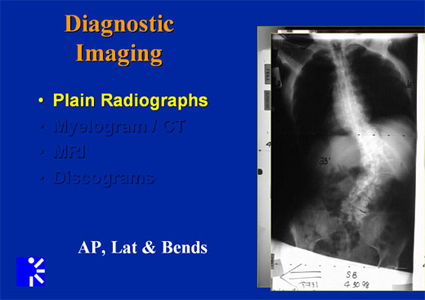 adult idiopathic scoliosis - diagnositic images