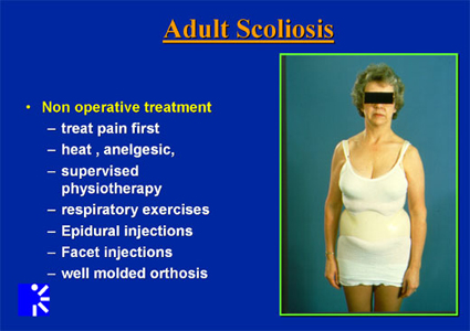 List of non operative treatment options for adult scoliosis.