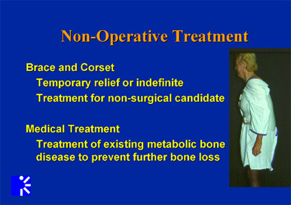 Non operative treatments for adult scoliosis.