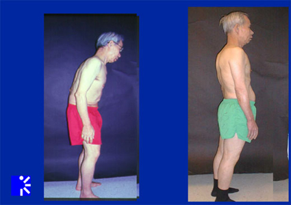 Before and after photos of adult scoliosis patient.