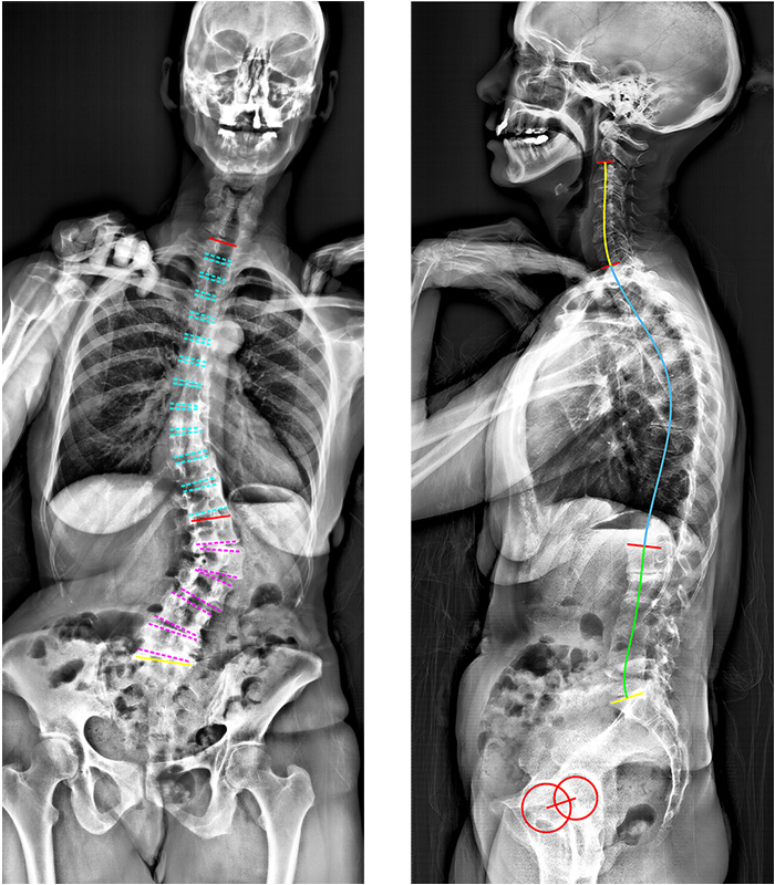 Adult Spinal Deformities: An Overview
