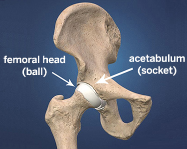 Dislocated Hip Symptoms, Diagnosis and Treatments | HSS