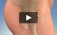 Video icon for the hip replacement anterior approach animation