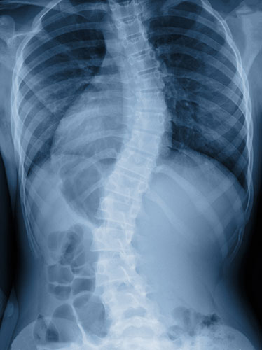 X-ray image of a patient with scoliosis
