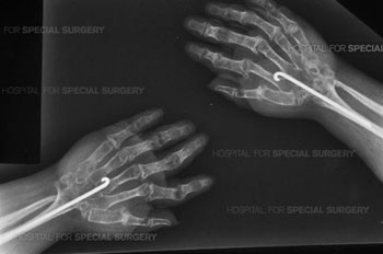 Post op X-ray of patient who has undergone arthrodesis of both wrists