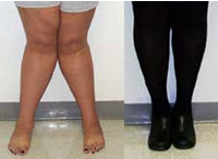 Image of knock knees before and after