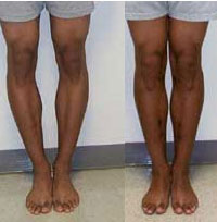 Image of bowlegs before and after
