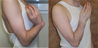 Before and after photo of Radial Club Hand Wrist/Forearm Deformity