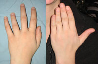 Before and after photo of Metacarpal (finger) lengthening