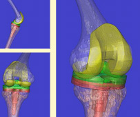 Image: Pre-op 3D CT reconstruction with implants
