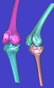 Image: Pre-op 3D CT reconstruction