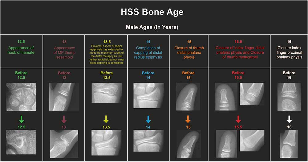 Bone Age Chart