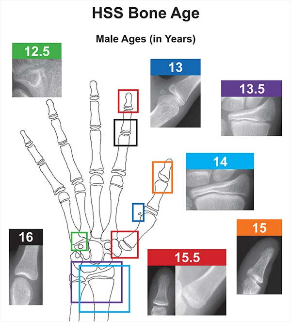 A New Validated Shorthand Method for Determining Bone Age