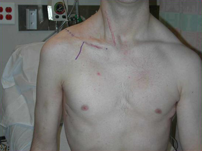 A Patient Before Brachial Plexus Repair with Markings Showing the Site of Surgery.