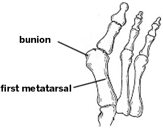 Common Conditions Of The Foot And Ankle An Overview