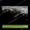 Ultrasound of the Month Case 42
