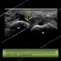 Ultrasound of the Month Case 45