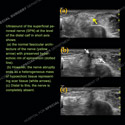 Ultrasound of the Month Case 63