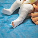 Photo of a baby being treated for club foot