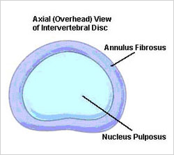 Diagram showing overhead view of a lumbar spinal disc.