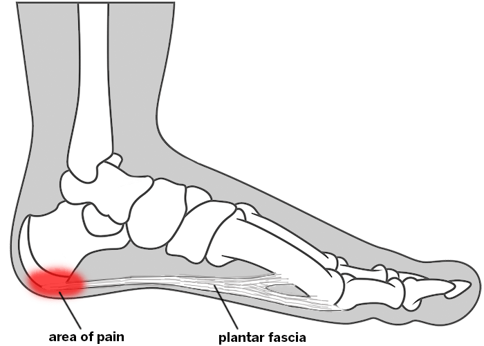 aa88efdc51 Foot, showing location of pain for plantar fasciitis