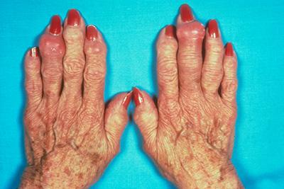 Inflammatory Arthritis: Causes, Symptoms and Treatment | HSS
