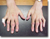 Photo of multiple tophi in the hands of a patient with long-standing gout.