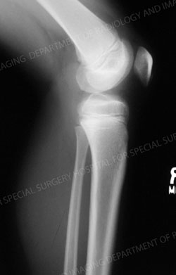 X-ray image of normal pediatric knee