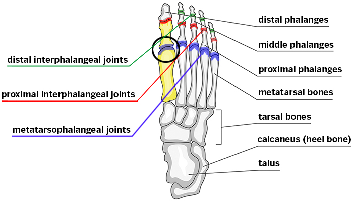 hallux rigidus (stiff big toe) hss edu Diagram of Sesamoiditis