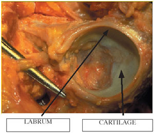 Labrum and cartilage of the hip socket from an article about hip arthroscopy