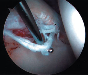 image of a torn labrum at the rim of socket from an article about hip arthroscopy